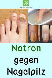 Natron gegen Nagelpilz #Nagelpilz #Natron #Hausmittel #Tipps – Gesundheit und Fitness