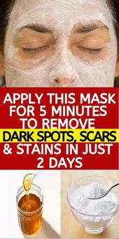 Homemade Face Mask To Remove Dark Spots, Scars & Stains In 2 Days – Skin Care Ti…