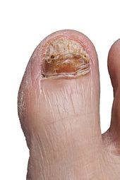 How Long Does It Take For Coconut Oil To Cure Nail Fungus-Cure Toe Fungus Vicks – Cure Toenail Fungus