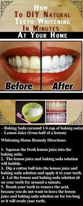 DIY Natural Teeth Whitening in Minuten bei Ihnen z…