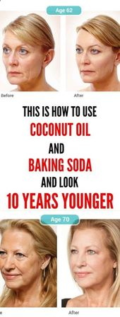 This Is How To Use Coconut Oil And Baking Soda To Look 10 Years Younger – Health Care Fitness