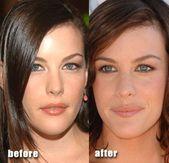 Liv Tyler vor und nach plastischer Chirurgie, Lippeninjektionen. Beschreibung von pla …