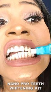 Nano Pro Teeth Whitening Kit ?