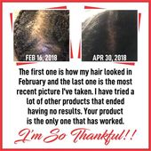 System D Hair ReGrowth Serum For CCCA- Baldspots-BigChop-Alopecia- Hair Progress Oil For All Hair Sorts Teenagers, Youngsters, Breakage Quick Appearing