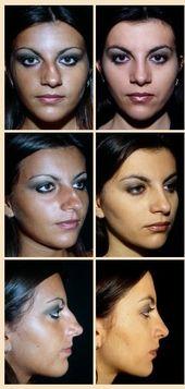 Krumme Nasenchirurgie #Gekrümmte #Nasen # Schönheitsoperationen #Schirurgie