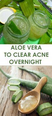 Aloe Vera to Clear Acne Overnight