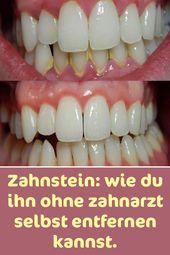 Zahnstein: wie man ihn ohne Zahnarzt entfernt.   – Gesundheit & Körper