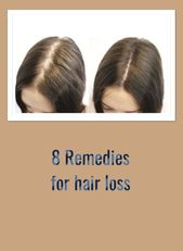 Hair loss: Therapy, Pure treatments, Causes