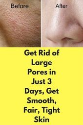 Get Rid of Large Pores in Just 3 Days, Get Smooth, Fair, Tight Skin