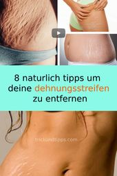 8 natural tips to remove your stretch marks #natural #tips #stretch marks