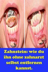 Zahnstein: wie du ihn ohne zahnarzt selbst entfernen kannst.