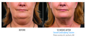 How to Reduce a Double Chin with CoolSculpting
