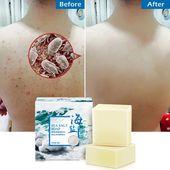 Removal Pimple Pore Acne Treatment Sea Salt Soap Cleaner Moisturizing