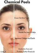 Chemisches Peeling für Aknenarben, Haut, Gesicht – facial