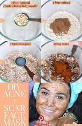 Beste DIY Gesichtsmaske für Akne & Narben Diese DIY Gesichtsmaske für Akne & Narben …..   – DIY Beauty Tips Ideen