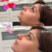 Nose Job before & after Liquid rinoplasty 150 …