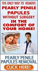 Cream penile papules treatment 3 Ways