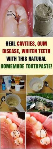 Heal Cavities, Gum Disease, & Whiten Teeth & This Natural Homemade Toothpaste!!!…