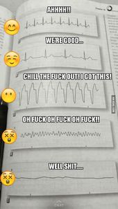 Fast method to learn an EKG