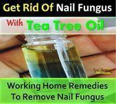 Photo of #Nail FungusZelfgemaakte Tea Tree Oil For Nail Fungus Nail Fungus Hoe te Nagel Nagel … – Nail Fungus Home Remedies – Nail