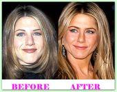Jennifer Aniston Plastische Chirurgie vor und nach #JenniferAnistonPlasticSurgery …
