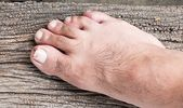 How To Get Rid Of Toenail Fungus With White Vinegar-What Causes Toe Fungus And How To Get Rid Of It – FIX TOENAIL FUNGUS OVERNIGHT – Fix Toenail Fungus