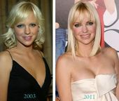 #Anna #Faris #Plastic #Surgery       Anna Faris plastic surgery before & after -…