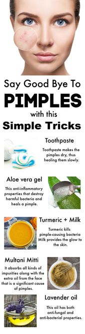 How You Can Easily Get Rid of Pimples Fast Using These Methods