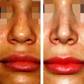 #Nose #Open #rhinoplasty #surgery #Tip - Open Rhinoplasty Nose Tip Surgery  Open...