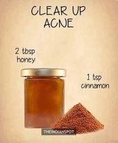 13 Überraschende Hausmittel gegen Akne – Beauty Favorites