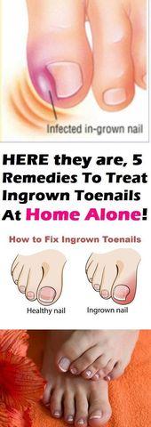 5 – Remedies to Treat Ingrown Toenails at You Own Home – #ingrown #remedies #t…