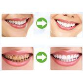 Resolute Dental Care Tips Signs #dentistlife #Sens…