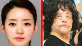 5 Misslungene Schönheitsoperationen – Die schrecklich endeten!