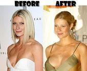 Dutiful halved Breast enlargement supplement see t…