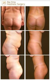 #liposuction #tuckpatient #aesthetic #received #handles