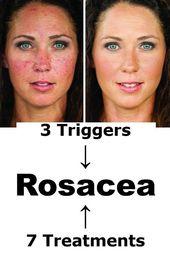 Rosacea  u2192 3 Auslöser & 7 natürliche Behandlungen zu Hause Liste der Lebensmittel & … – Hairstyle