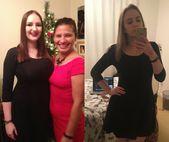 My boobiversary – one year post breast reduction