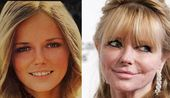 Cheryl Tiegs Plastic Surgery Before and After Pictures   Celeb Surgery