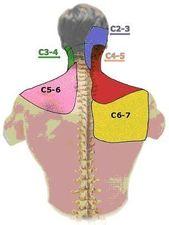 Was tun bei Schulter- und Nackenschmerzen: Ursachen, Therapie, Tipps