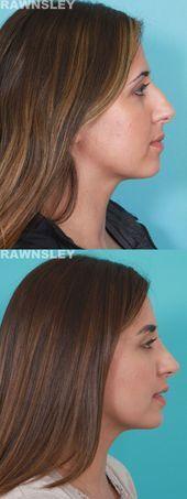 #Rhinoplasty #rhinoplasty #rawnsley #rawnsley #plastic – – –