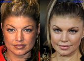 Fergie Plastic Surgery Photo Before and After
