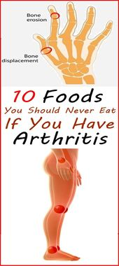 Arthritis ist normalerweise eine schwächende Krankheit, von der sowohl Männer als auch Frauen von …