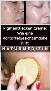 Pigment Spots Cream: Wie eine Kartoffel-Gesichtsmaske hilft    – Gesundheit und Fitness