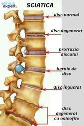 Coloana vertebrala lombara