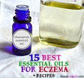 # Skincare Recipes-15 Essential Oils for the Treatment of Eczema – Zinksaul -……