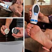 Foot Care Pedicure Foot File Callus Remover