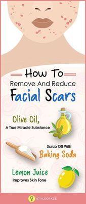 So entfernen Sie Gesichtsnarben auf natürliche Weise – #define #face Scars # Natural …   – beauty