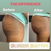 NEW BOOTY😍😍😍 ⚫️ NON SURGICAL BUTTOCKS ENHANCEMENT SESSION ( REAL RE…
