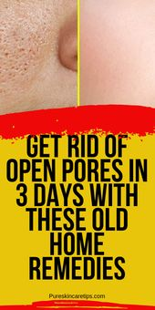 Reduce Open Pores In 3 Days With These Old Home Remedies – Skin Care Tips