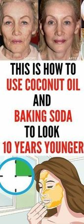 This Is How To Use Coconut Oil And Baking Soda To Look 10 Years Younger #SkinRemediesBakingSoda